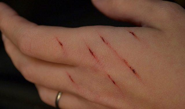 Gambar Luka Kena Cakar Kucing Liar